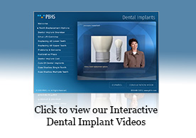 Dental Implants Presentation